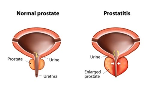 Porstate Enlargement Homeopathic Medicines, Treatment | Hypertrophy